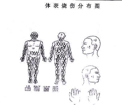 烧伤体表图.jpg