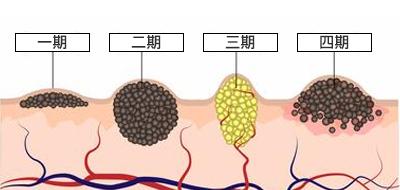 甲状腺乳头状癌.jpg